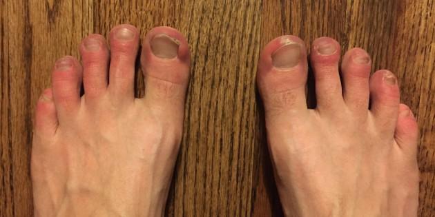 Heavey toes