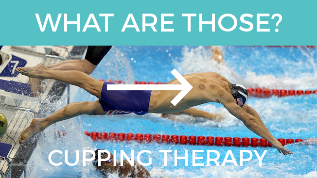 SS 089 – Cupping Therapy- Placebo Effect or Science?